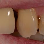 Hampaan värinmääritys