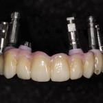 Implanttisilta