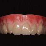 Kokoproteesi hammasasettelu